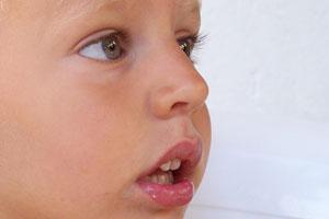 Trauma della bocca nei bambini